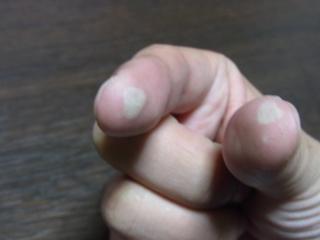 finger 2010_11_05.jpg